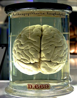 300px-Chimp_Brain_in_a_jar.jpg