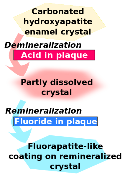 424px-Enamel-fluoride-remineralization.svg.png