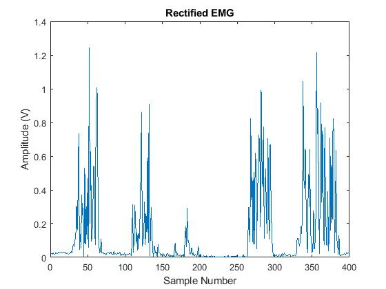Issue in EMG signal using matlab with arduino | Physics Forums