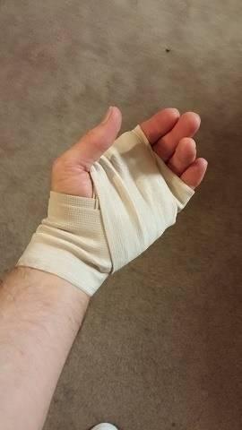 Cut Hand.jpg