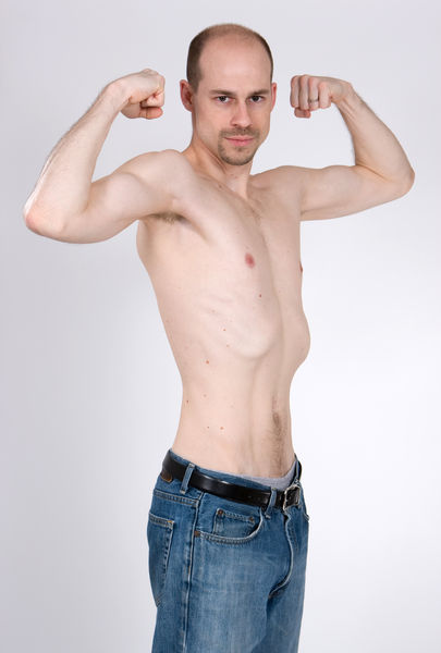 muscular-dystrophy-2561.jpg