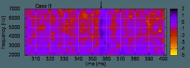 sound-spectrogram